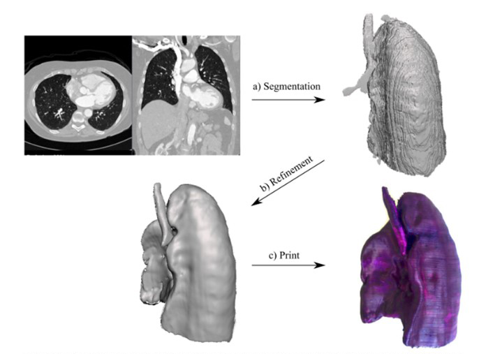 Процес створення надрукованої на основі медичного зображення 3D-моделі